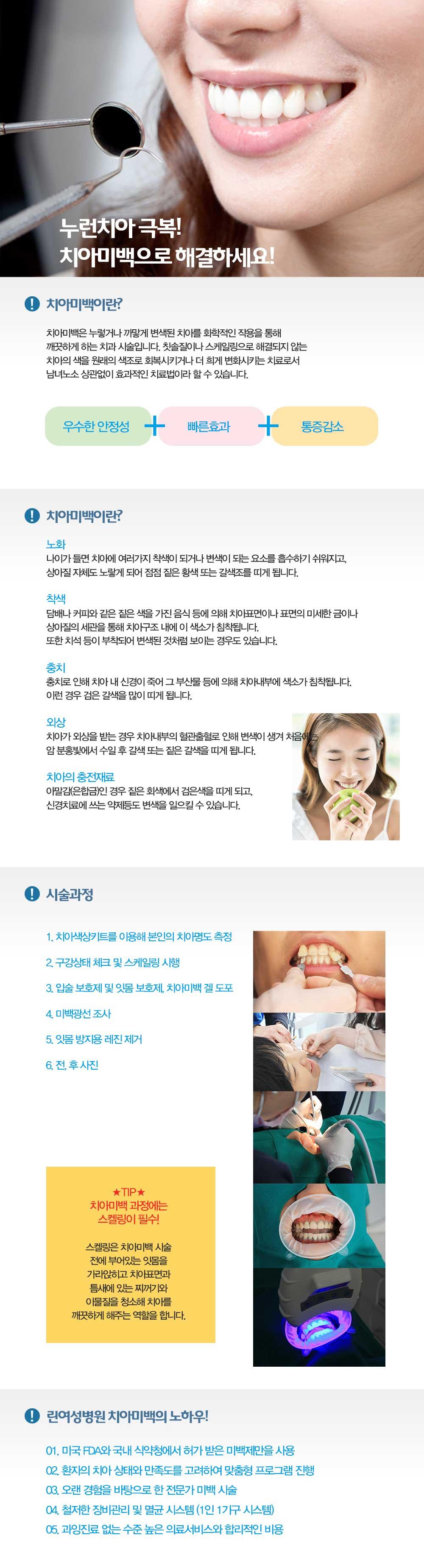 치아미백소개